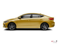 2018 Hyundai Elantra Sport TECH | Photo 1 | Blazing Yellow